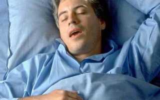 Можно ли вылечить в домашних условиях Апноэ сна