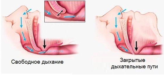 Избавиться от храпа хирургическим путем