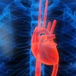 Нарушения сердечно-сосудистой системы