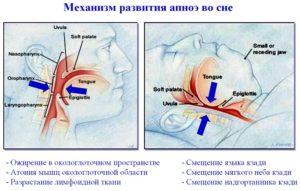 Синдромом апноэ