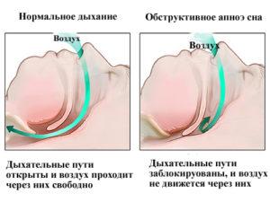 Синдромом обструктивного апноэ сна