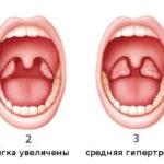 Увеличение миндалин и аденоидов