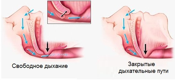 Увулопалатопластика