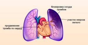 Достаточное поступление воздуха в лёгкие