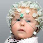 Энцефалограмма мозга