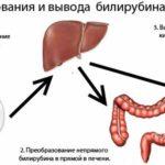 Гипербилирубинемия