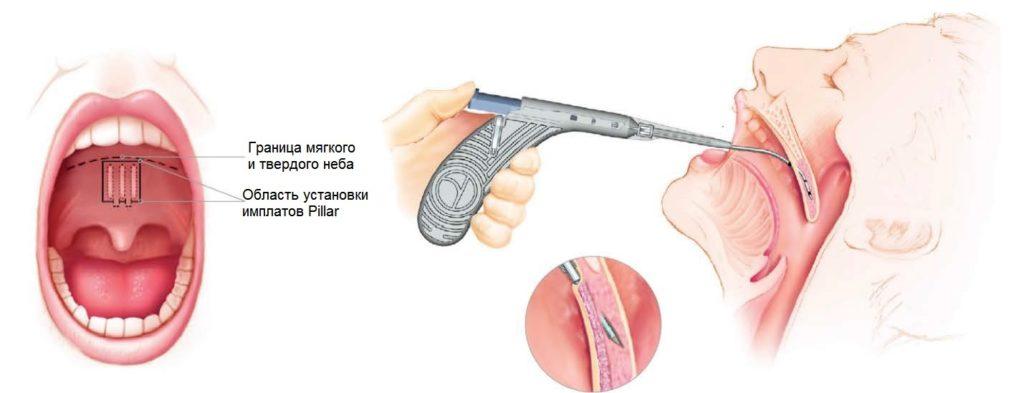 Небные имплантаты