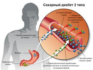 Сахарный диабет 2 типа