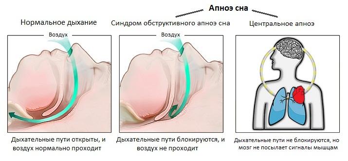 Центральное апноэ