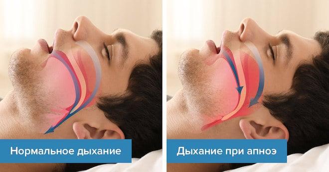 Апноэ сна проявляет следующие симптомы