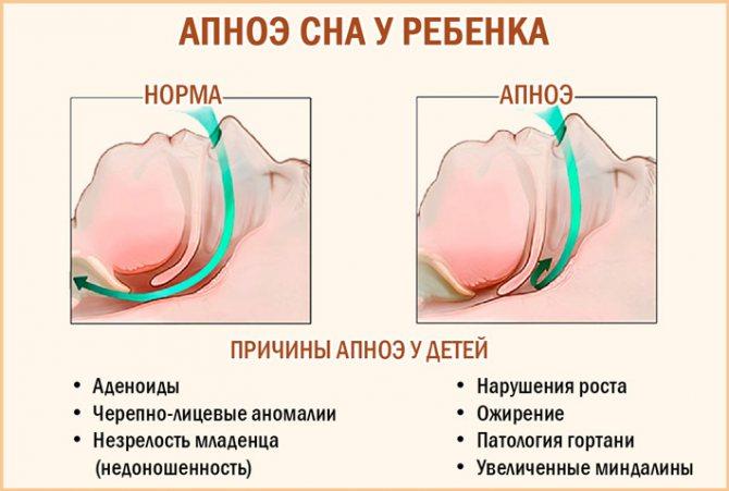 Аденоиды и храп у ребенка: симптомы, опасность патологии, методы лечения